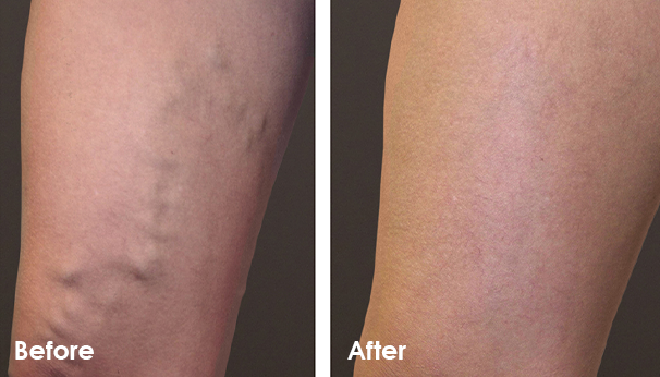 Vein Problem Solution Before and After