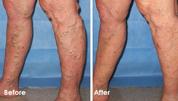 Before and After for Vein Treatment