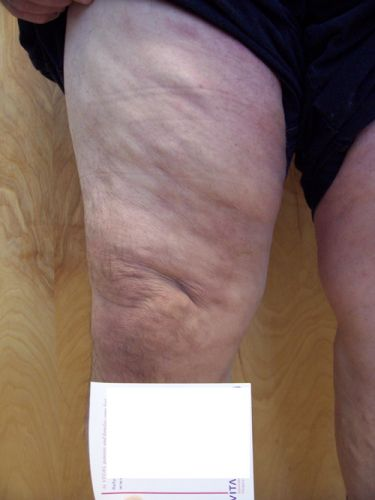 Why Removing spider veins is healthy?