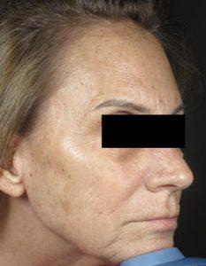 Miami Laser Skin Resurfacing