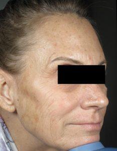 Miami Skin Rejuvenation