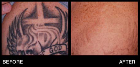 Miami Tattoo Removal