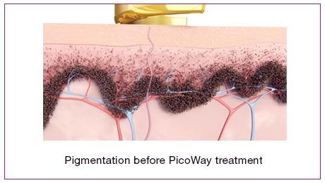 Pigmentation Before Picoway Treatment