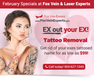 miami tattoo removal